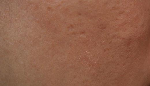 老人性色素斑や雀卵斑や肝斑などシミの種類を解説するよ。