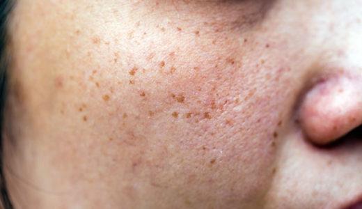 肝斑と普通のシミとの違いと見分け方は?肝斑に効く美容液ってある?